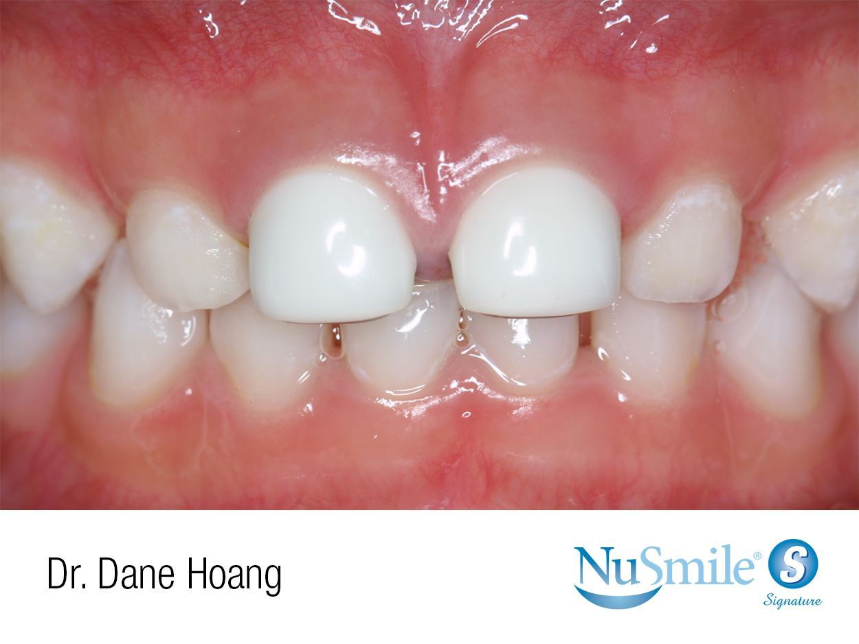 NuSmile Signature Pre-veneered Crowns  Early Childhood Caries